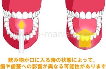 飲み物が口に入る時の状態によって、歯や歯茎への影響が異なる可能性があります