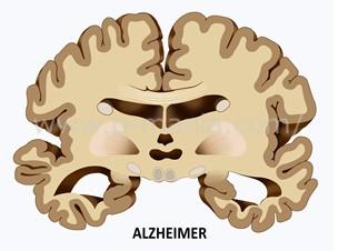 アルツハイマー