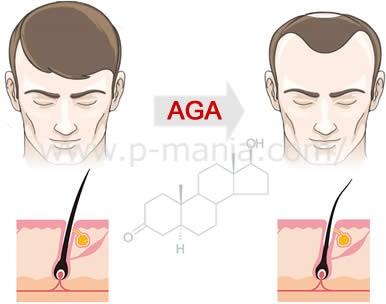 男性ホルモンとAGA